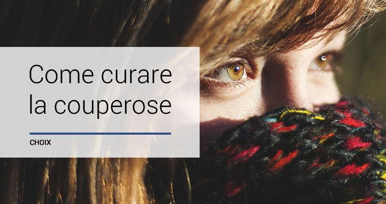 Cos'è e come curare la couperose, sintomi e cause